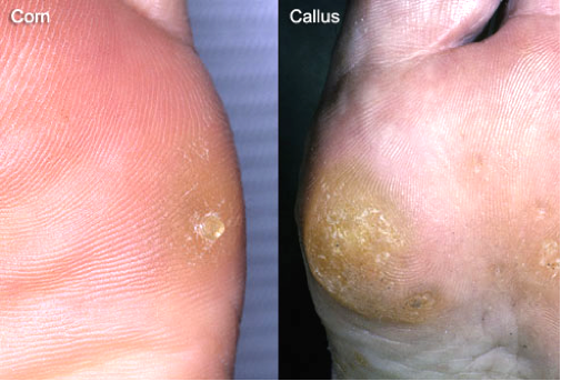 Callus and Corns