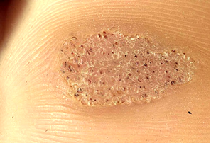 Plantar warts ipswich podiatry centre - Are warts contagious in a swimming pool ...