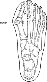 bunion-sketch