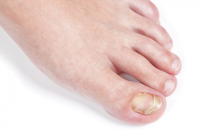 Fungal Nail Problems