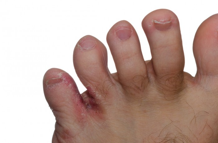 Fungal Skin Infections