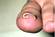toenail-ingrown