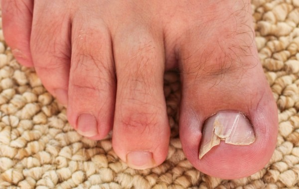 Toenail Problems